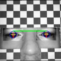Automatic Measurement of Eye Features Using Image Processing