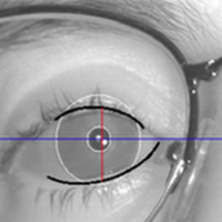 Eyelid Measurements Using Digital Video Processing