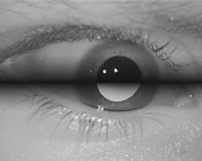 xSDL: stroboscopic differential lighting eye tracker with extended temporal support